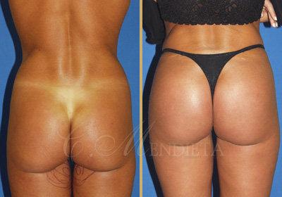 buttockaugmentation079814